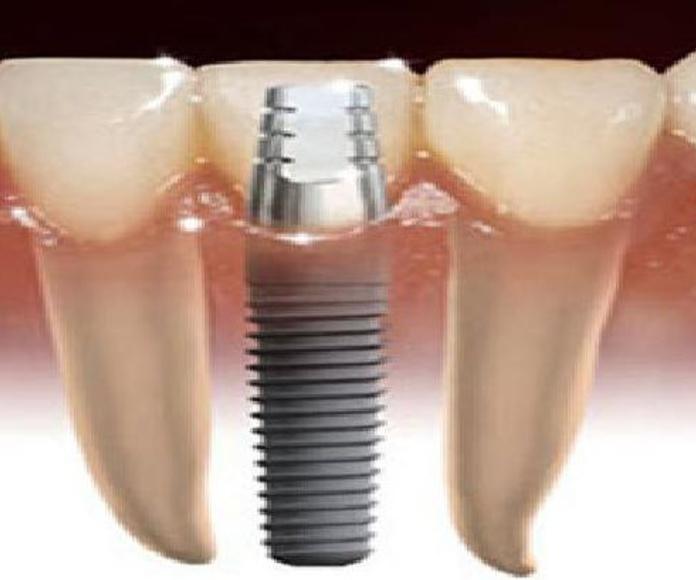 Implantología: Tratamientos  de Juan Luis Alonso de Dios