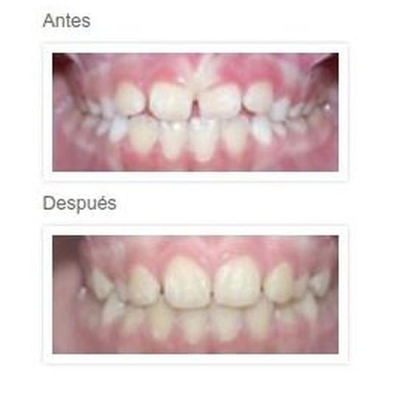 Tratamientos Ortodoncia niños: Tratamientos y Aparatos de Dra. Amaia Goena