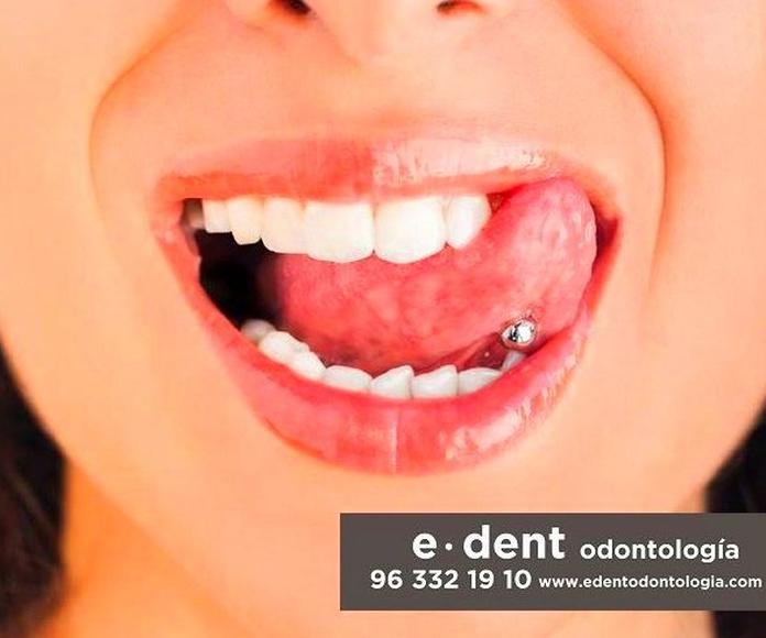 Implantes dentales Valencia - Clínica dental Valencia