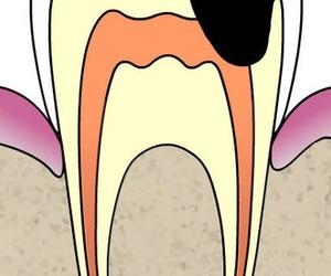 Endodoncia, tratamiento de conductos radiculares