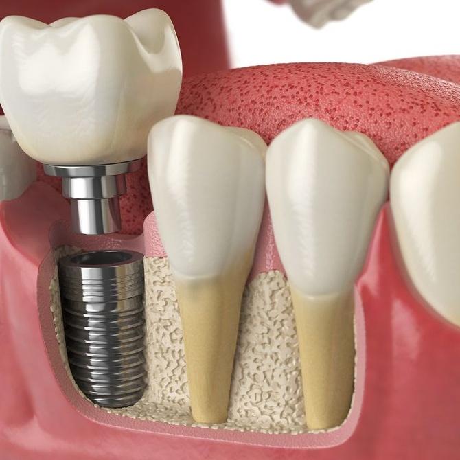 Ventajas y desventajas de los implantes dentales