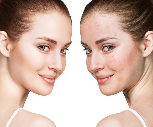 Tratamiento facial para el acné
