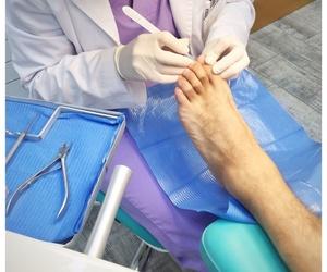 Tratamiento Quiropodológico: Tratamiento periódico de todo tipo de patología ungueal y dérmica en la zona del pie