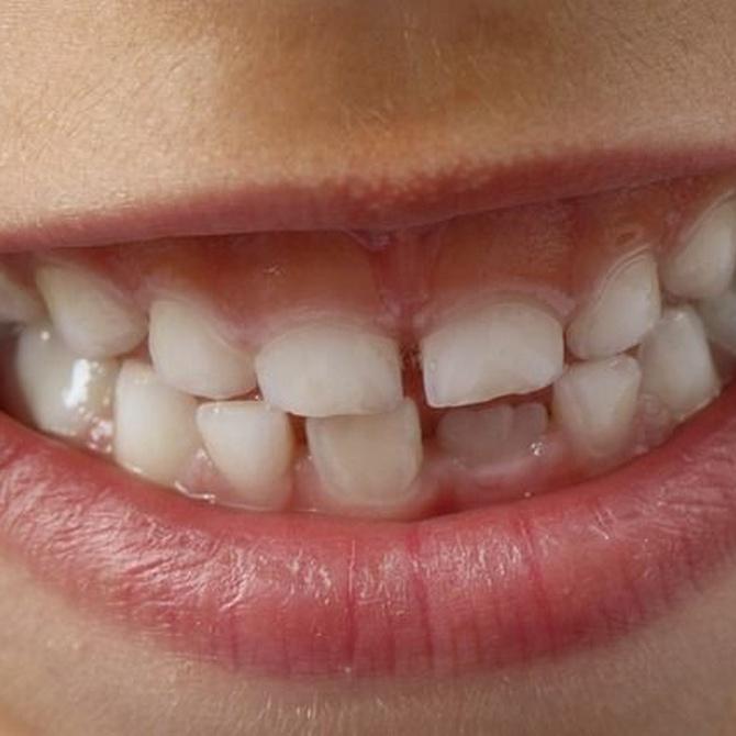 ¿Qué es la gingivectomía?
