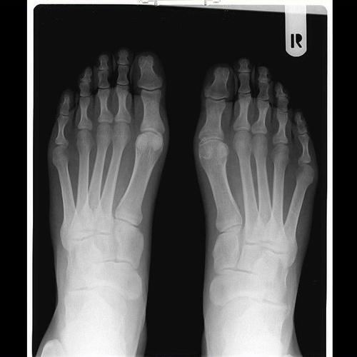 Servicio de radiografía del pie