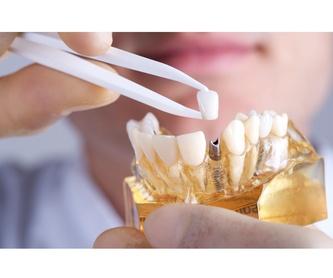 CARILLAS : Tratamientos Dentales de Clínica Dental Getafe