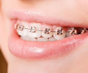 Consejos para disminuir las molestias de la ortodoncia