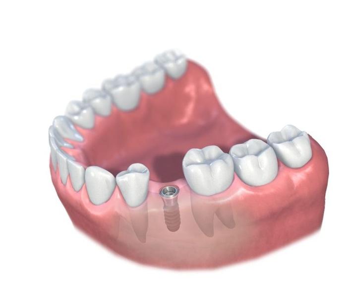 Implantes: Tratamientos de Clínica Dental Tucán