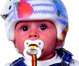 Casco corrector  para bebés