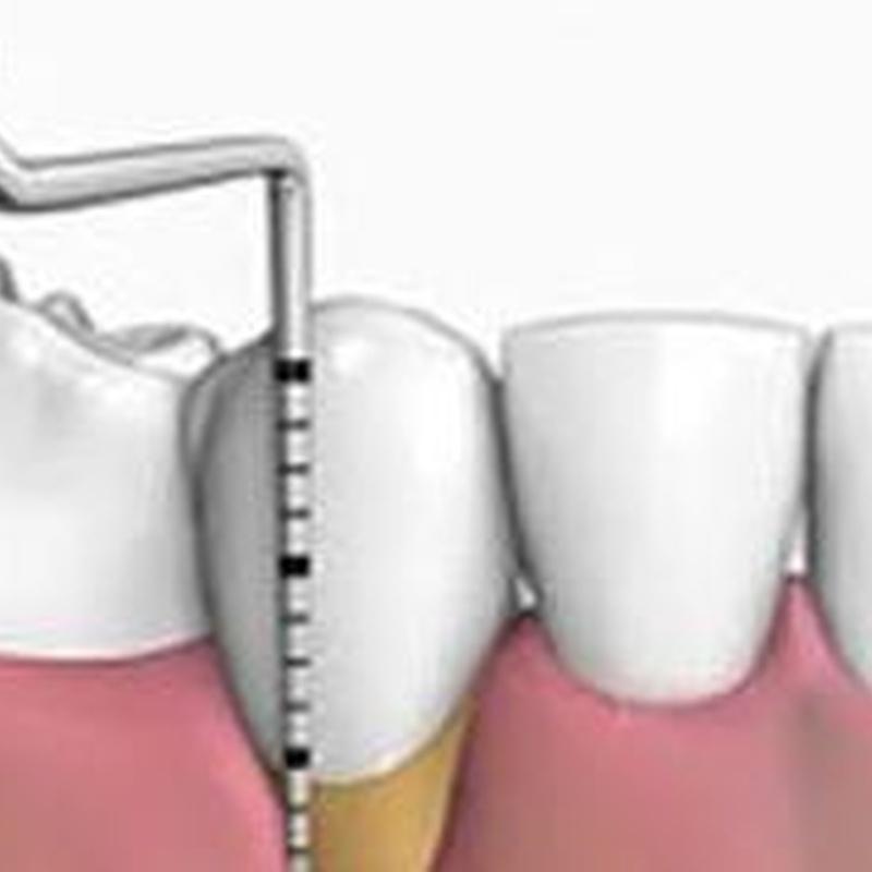Periodoncia: Tratamientos de Clínica Dental Tucán