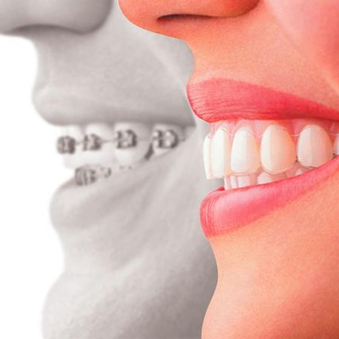 ¿Conoces el sistema de ortodoncia Invisalign?