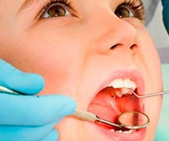 Extracción de muelas del juicio: Servicios de MAG Clínica Estético Dental