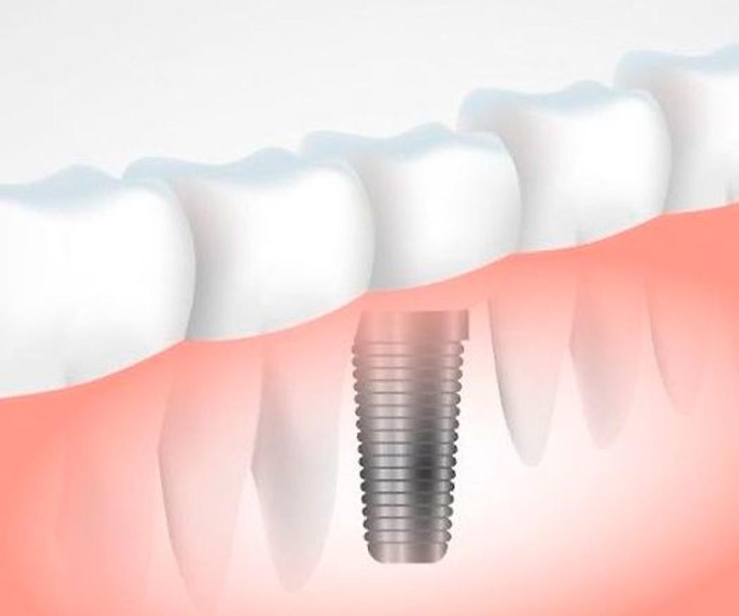 Implantes dentales, todo ventajas