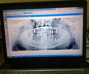Radiografía panorámica dental en Utrera, Sevilla