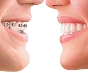 Ortodoncistas en Burgos