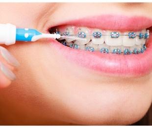La higiene dental con ortodoncia
