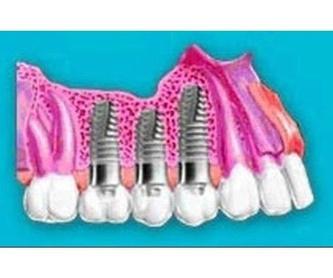 Limpieza dental: Tratamientos de Lucía González Botana