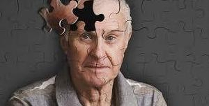 ¿Cómo ayudar a las personas con demencia ?.