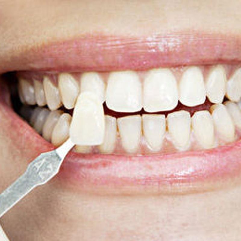 Clínica dental española / británica: Servicios de Centro Médico Fuengirola