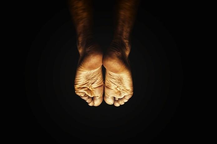 Goniometría: Servicios de Florenciano Restoy