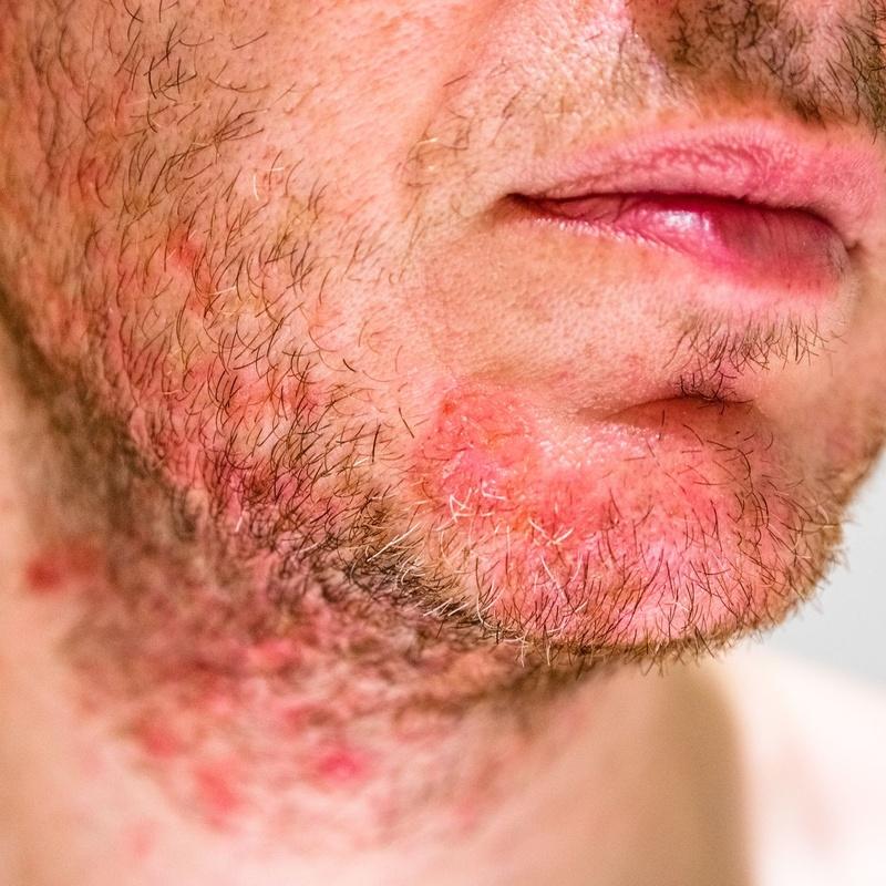 Dermatitis seborreica: Dermatología y Dermoestética de Dermatología Socorro Fierro