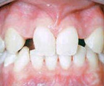 Odontología legal y forense: Servicios de Alser Dental