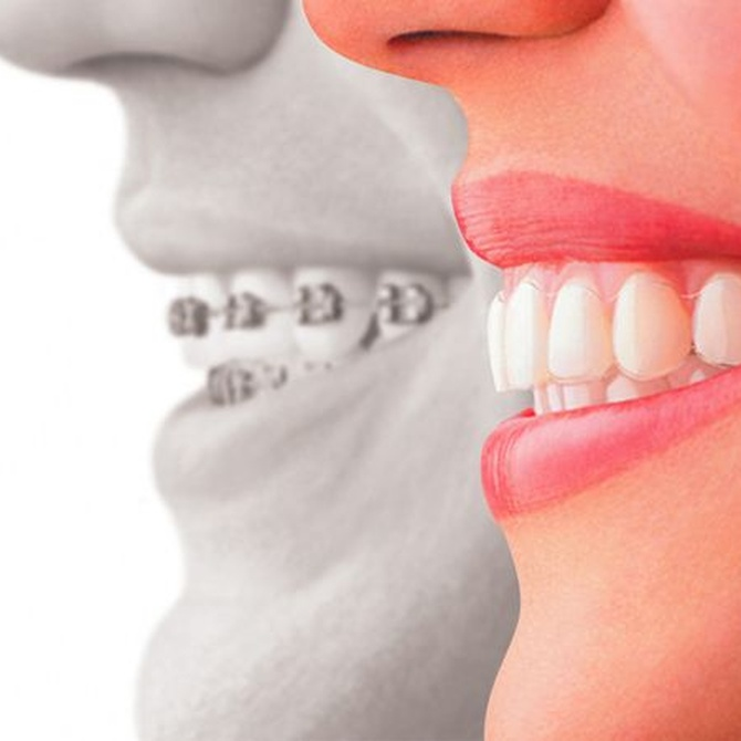 Principales cuidados después de una ortodoncia