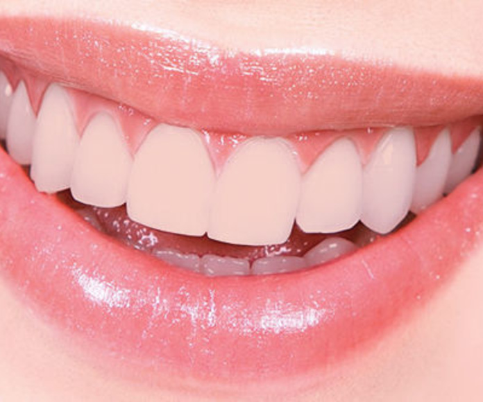 Diseño Digital de la Sonrisa (DSD): Tratamientos de Clínica Dental Olivieri