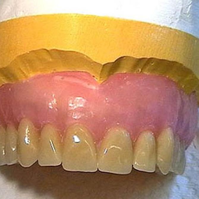 Los problemas dentales más habituales en los ancianos