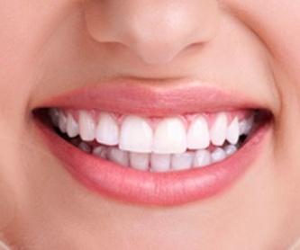 Ortodoncia: Tratamientos de Abando Hortz Klinika