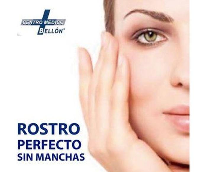 Eliminación de manchas en el rostro: Tratamientos de Centro Médico Bellón