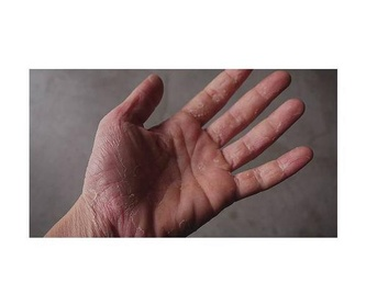 Alergias: Especialidades de Dr. García Robaina Alergólogo
