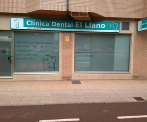 Clínica dental en Gijón