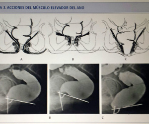 Movimiento de los músculos del suelo pélvico involucrados en el proceso de la defecación.