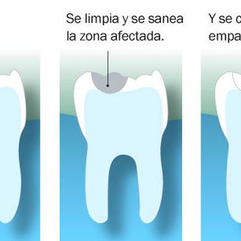 Obturación: Tratamientos de Hospident Clínica Dental