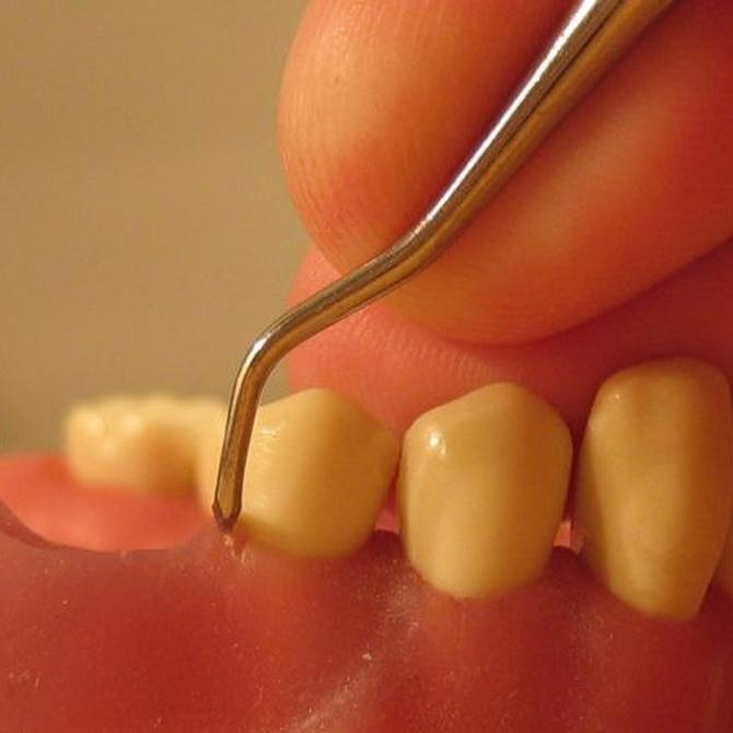 Causas y síntomas de la periodontitis