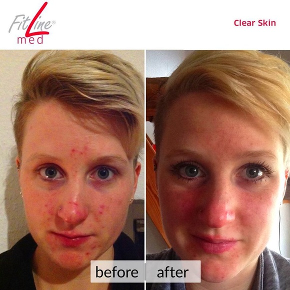 Clear Skin Fitline Med