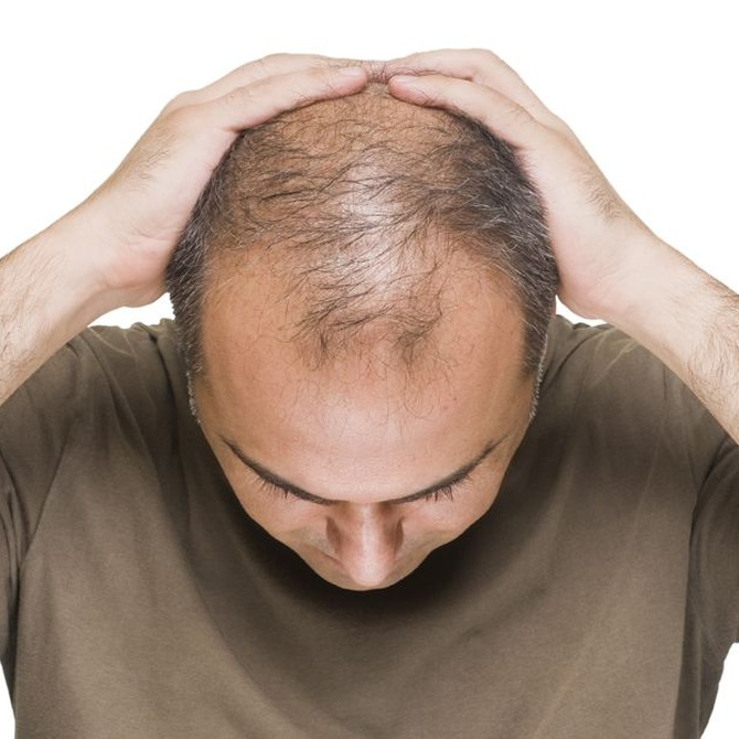 Las causas de la pérdida del cabello