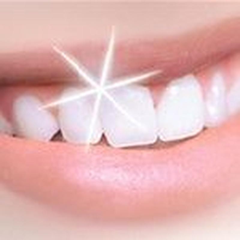 Blanqueamiento dental: Servicios de Smaltecanarias - Marisa Warcevitzky