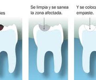 El dentista de los niños: Tratamientos de Dental Icaria, S.L.