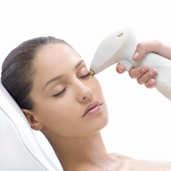 Minilifting facial  : Tratamientos   de BA Clíniques - Denia