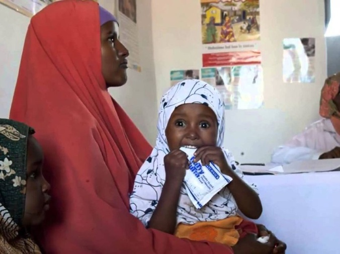 Cómo se mide la desnutrición infantil