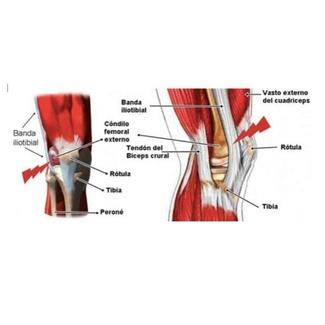 Lesión de la fascia lata y cintilla iliotibial