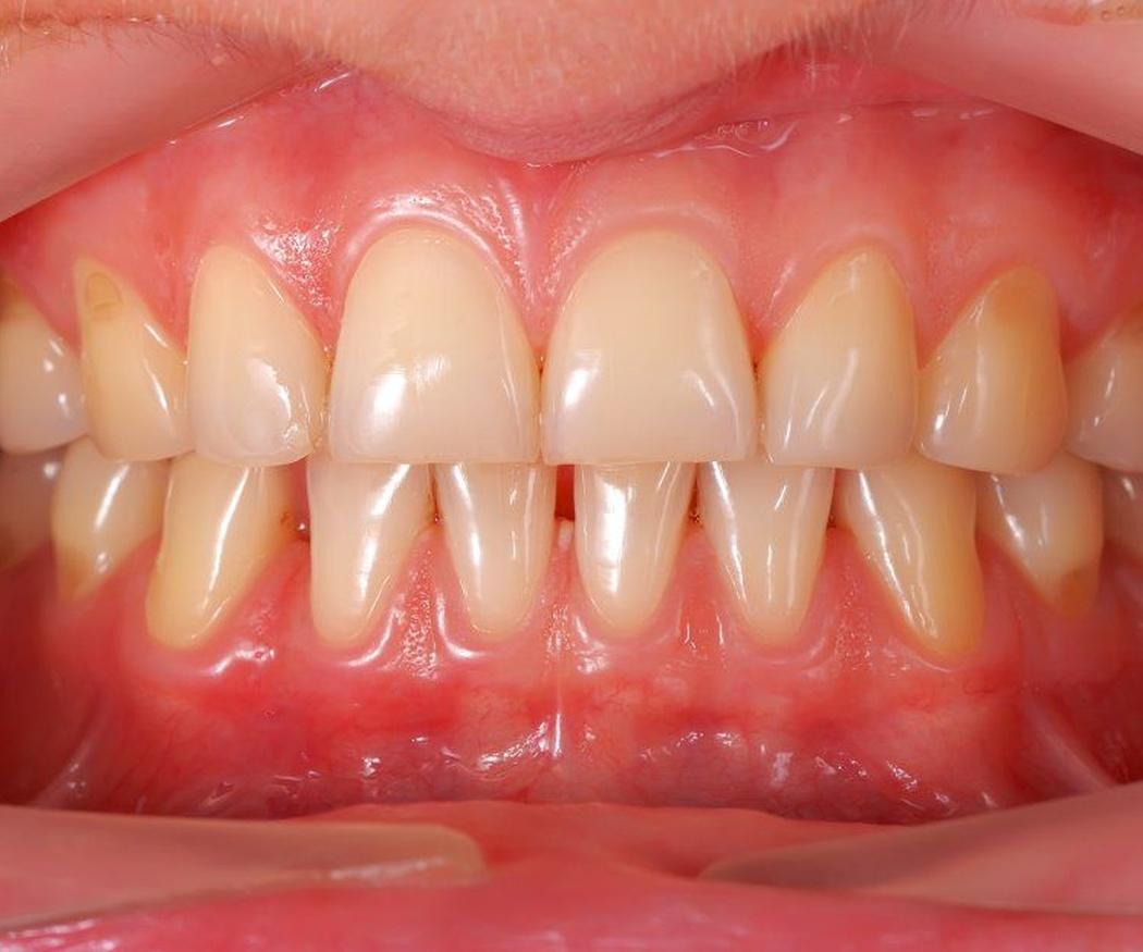 ¿Qué problemas puede causar la gingivitis?