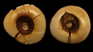 ¿Sabías que... el empaste dental más antiguo fue hecho con plantas hace 13.000 años?
