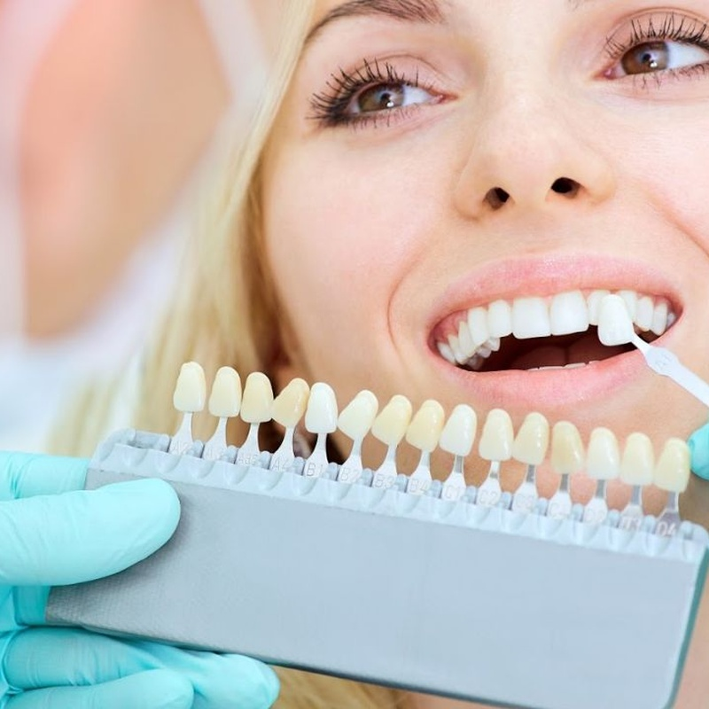 Estética dental: Especialidades de Clínica Dental Larumbe y Jiménez