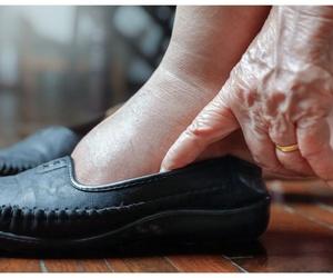 Patologías de los pies de nuestros mayores
