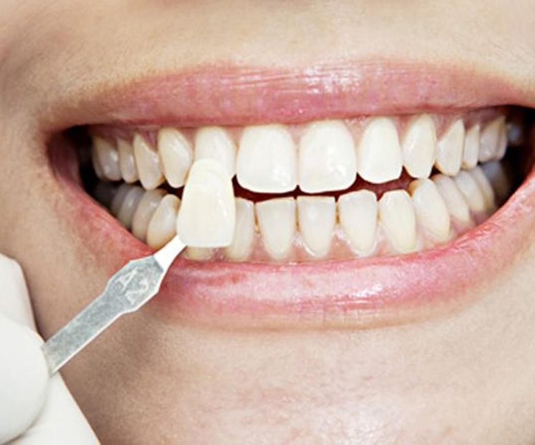 Fundas y carillas dentales ¿Son lo mismo?