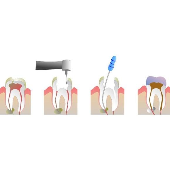 Endodoncia: Catálogo de Clínica Facal