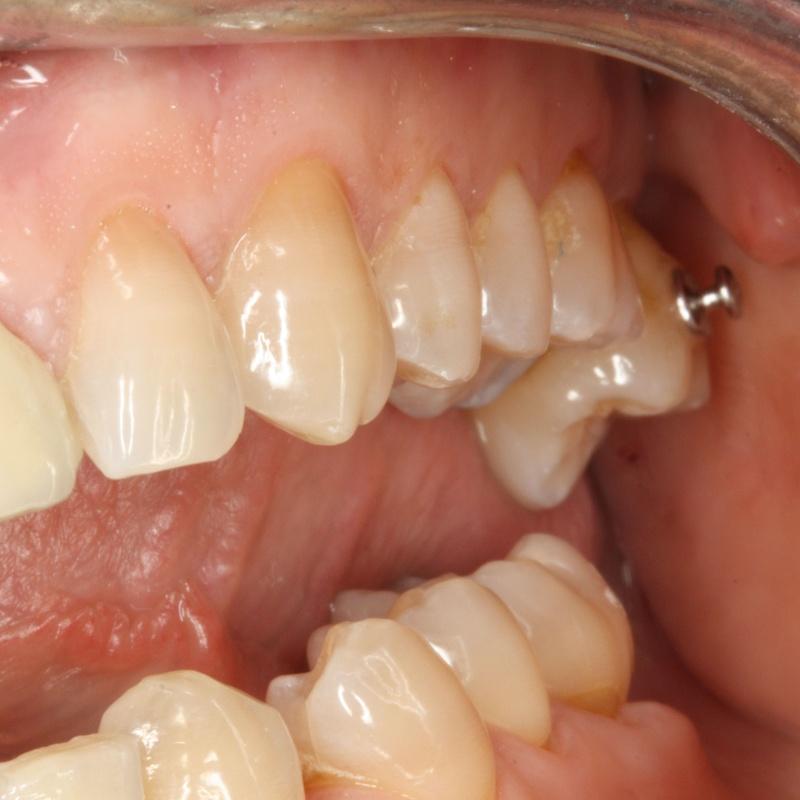Microimplantes para ortodoncia: Tratamientos de Centro Médico Dental Capitol